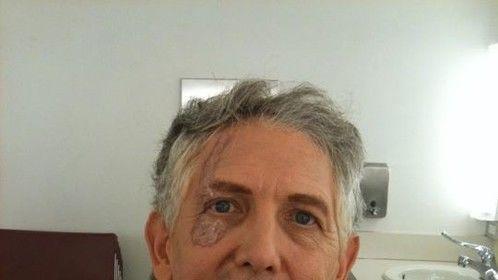 aged scar, andy had the great idea to add scar underneath the eye