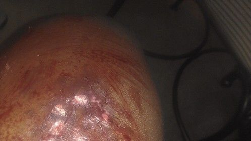 Burn on a leg ( MAKEUP)