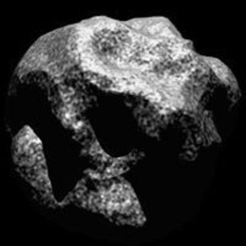 Cranio Sacrale