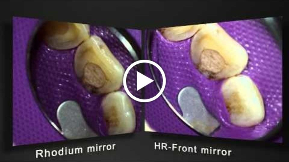 Roeder HRFront Mouthmirrors